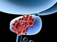 Prostat kanserinde yeni tanı ve tedavi yöntemlerinin uygulanmasına YDÜ Hastanesi'nde başlanıyor