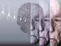 Alzheimer'ın belirtileri ve risk faktörleri nelerdir?
