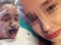 'Bipolar' teşhisiyle verilen ilacı içti, vücudunda yanıklar oluştu, görme yetisini kaybetti