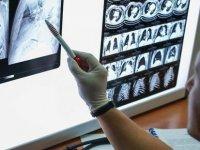 'KOAH'ta kök hücre tedavisi yeni bir umut olabilir'