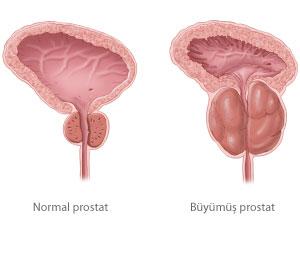 prostat-buyumesi-nedir.jpg